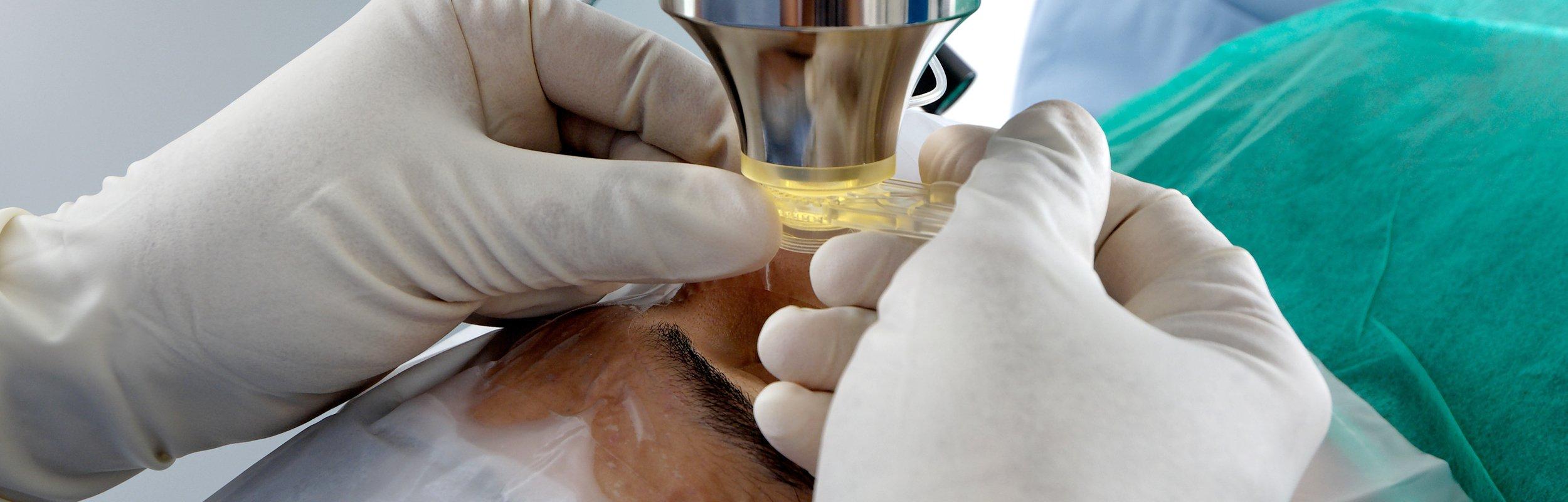 Opération laser de la myopie, l'astigmatisme, l'hypermétropie et la presbytie